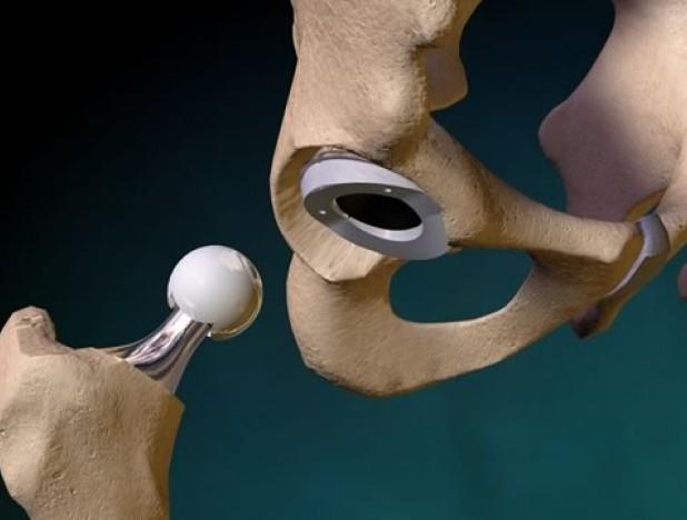 Операция fai на тазобедренный сустав операция на связках коленного сустава